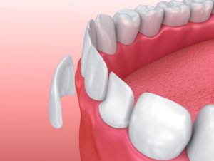 Porcelain Dental Veneers in Eastlake Chula Vista