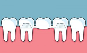 How Do Dental Bridges Work?