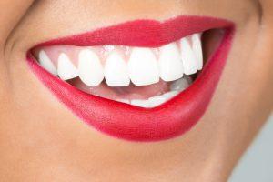 teeth whitening eastlake