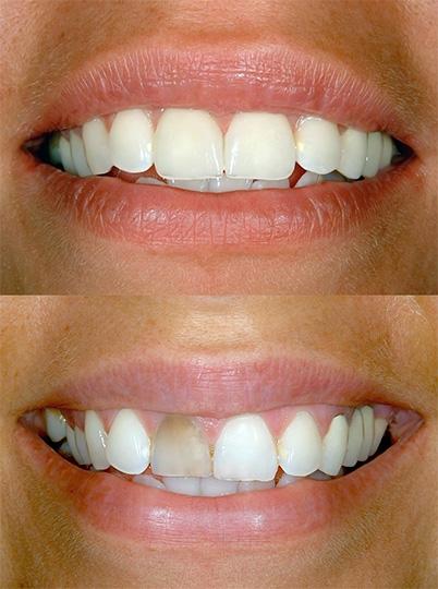 Cosmetic Dentistry in Chula Vista