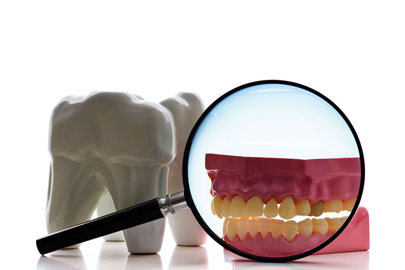 Root Canal in Chula Vista